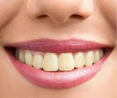 Laat je tanden weer stralen via tanden bleken in Rotterdam